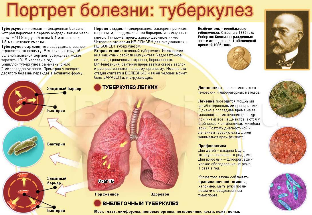 Туберкулез с чем связано